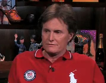 Bruce jenner facelift surgery : Photo