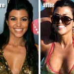 Kourtney Kardashian breast augmentation : Star Regret Plastic Surgery