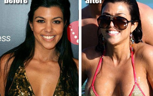 Kourtney kardashian breast implants before and after pictures