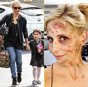 Sarah michelle gellar the crazy ones : Actress Is All Bloody and Banged Up