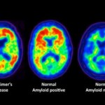 Alzheimer's Affected by Cholesterol Level
