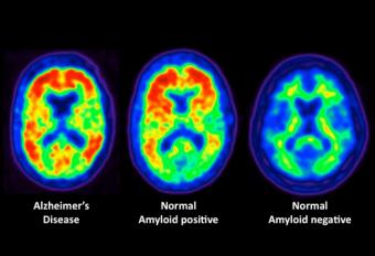 Alzheimer's Affected by Cholesterol Level : Study