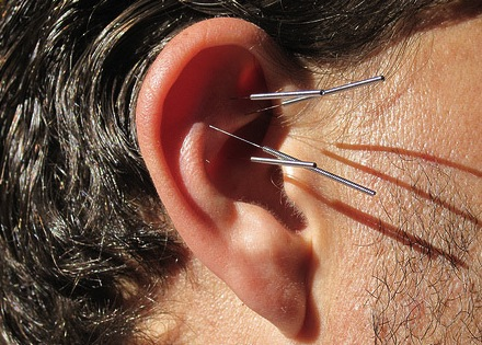 Ear acupuncture could help lose weight, Study