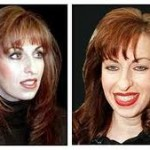 Paula Jones Undergoes Plastic Surgery