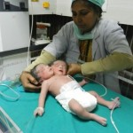 Two headed baby born in India
