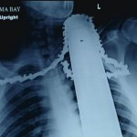 Workman Survives Chainsaw in Neck