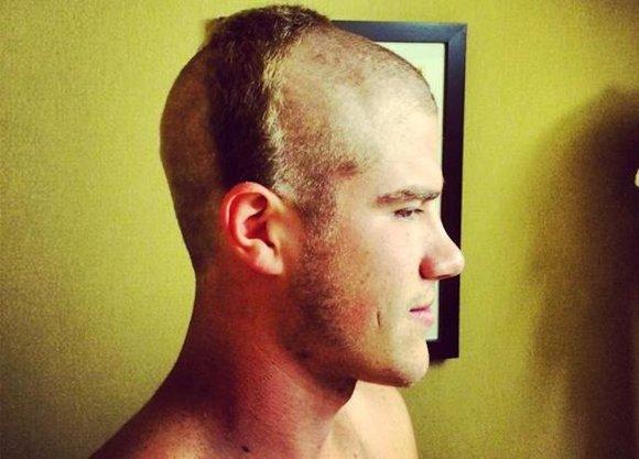 hair hazed