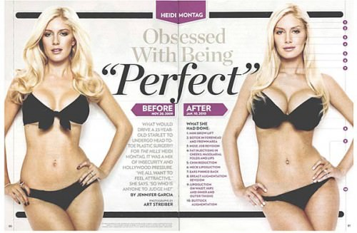 Heidi Montag : Reality star Says She's 'Done' with Plastic Surgery