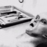 UFO Expert Releases 'Authentic' Images of Alien Autopsy (Photo)