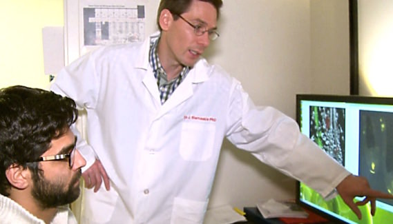 Calgary Researchers look to banish baldness with stem cells