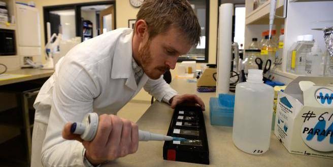 Alec falkenham student invents tattoo removal cream for Home tattoo removal cream