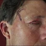 Man Gets Mauled By Bears Twice On Same Trail (Video)