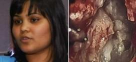 "Yamini Karanam : Woman's brain tumor turns out to be ""evil twin"" (Video)"