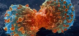 Canadian cancer cases will increase 40 per cent by 2030