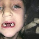 Dentist Accused Of Child Abuse : Took Out Teeth for No Reason