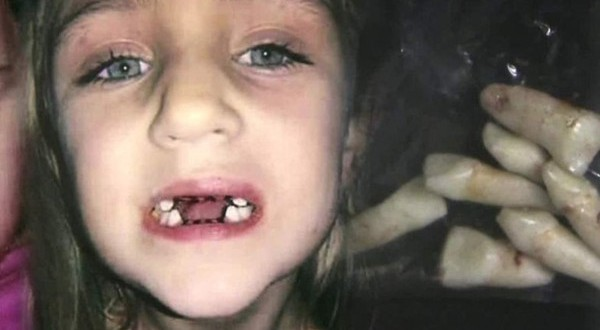Dentist Accused Of Child Abuse : Took Out Teeth for No Reason (Video)