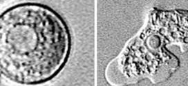 Brain-eating amoeba kills 21-year-old woman in Bishop, California