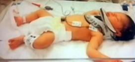 Nurse Drop Newborn Baby? Newborn fractures skull after being dropped by Pa. nurse; investigation underway (Video)