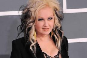 Cyndi Lauper: Pop Singer Reveals Extreme Psoriasis Battle