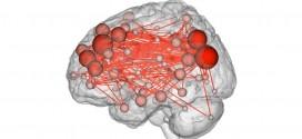 Scans Show People Have a Brain 'Fingerprint,' Yale study