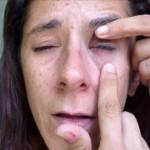 Woman glues eye shut after Visine, super glue mixup (Video)