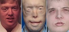 "Patrick Hardison: Face Transplant Surgeons Make History And Change A Man's Life ""Video"""