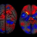 Researchers Discover There's No Such Thing As a Male or Female Brain
