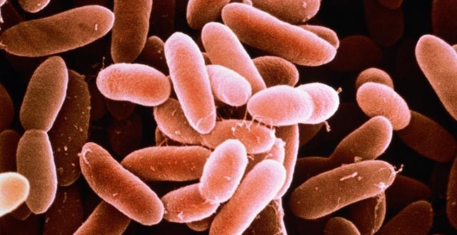 Seven hospitalized in Five provinces affected by Listeria outbreak, Ministry of Health says