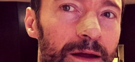 Hugh Jackman: X-Men star has another skin cancer growth removed
