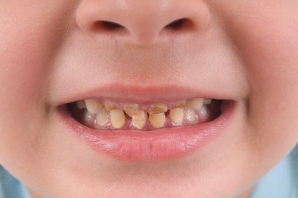 Tooth decay disease most common reason for day surgery on ...