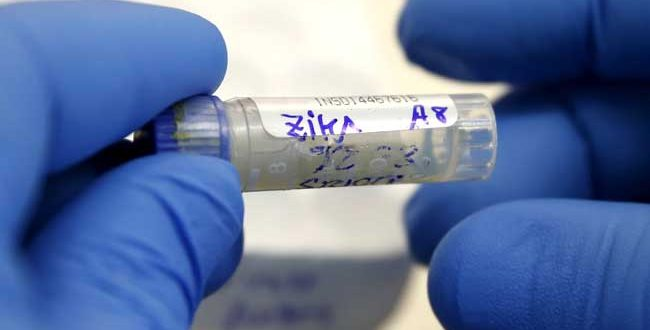 Urine More Accurate Than Blood for Zika Testing, CDC Says