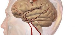 New research finds dementia risks increase with strokes