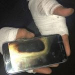 Amarjit Mann Says Galaxy S7 Exploded In His Hand