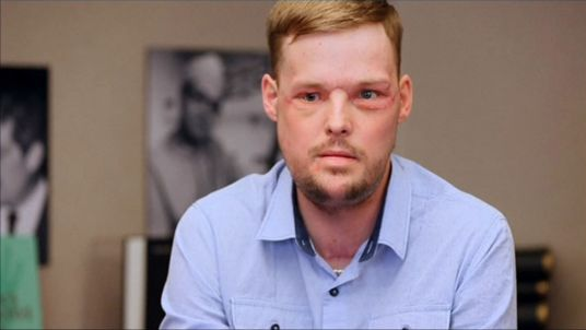 Face transplant helps Andy Sandness with second chance at life (Video)