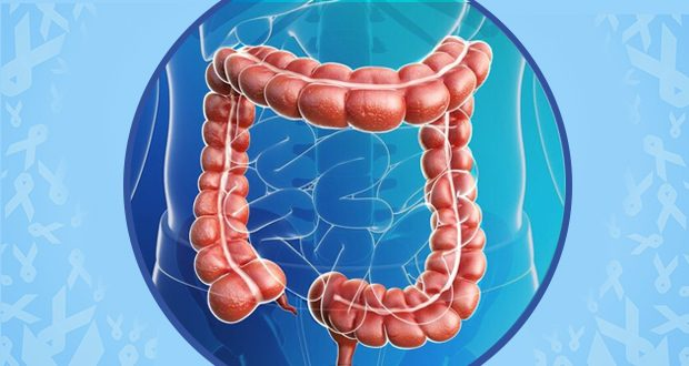 Colorectal cancer on the rise in millennials, says new study