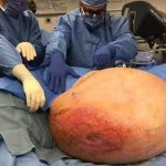 Mary Clancey has 140 pound malignant ovarian tumor removed