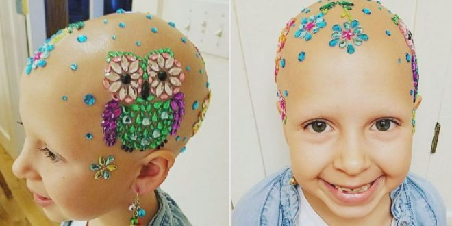 Young girl with alopecia dazzles on school's 'Crazy Hair Day' (Photo)