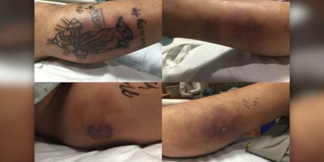 31-year-old man dies after ignoring new tattoos warnings