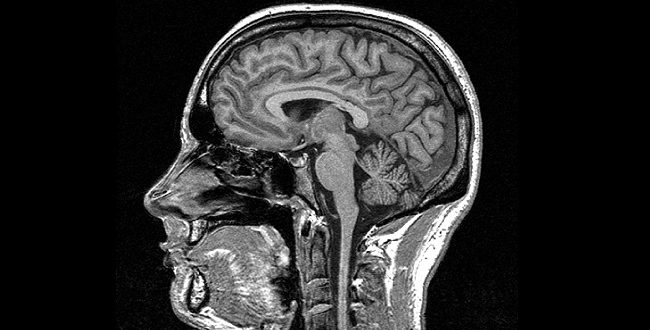 MRIs may help identify MS risks, Finds new research