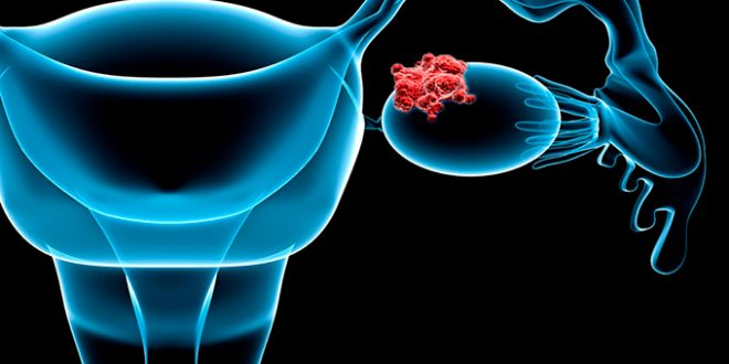 Ovarian cancer starts 6.5 years before it turns deadly, Says New Study