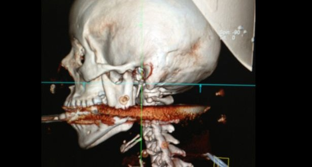 Brazilian woman 1 centimeter away from death : harpoon victim photo