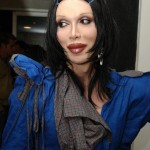 pete burns sues lip surgery