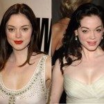 Rose mcgowan facelift, eyelids, fillers in lips and cheeks