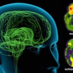 Schizophrenia is eight different diseases, not one : New Study