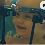 Internally decapitated toddler undergoes 'miracle' surgery (Video)