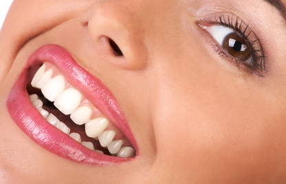 Frequent home tooth whitening causes damage, Says UBC Expert
