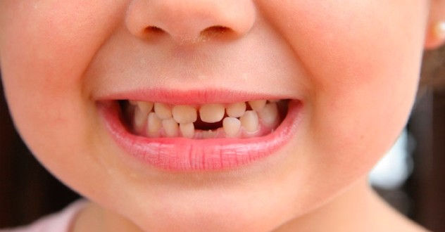 Research shows tooth decay worsened in Calgary children after fluoride removal