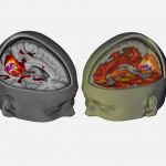 First scans show how LSD affects the brain, Study