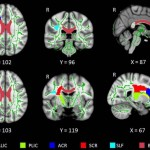 Insomnia Linked to Damage in Brain Communication Networks, New Study