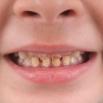 Tooth decay disease most common reason for day surgery on children, U of C study